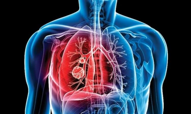 La tuberculosis mata casi dos millones de personas al año